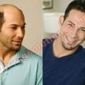 Hair Wig Manufacturer